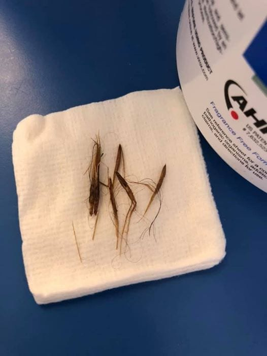 Foxtails that came out of a toy poodle's ear by I Love Veterinary